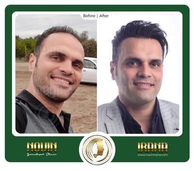 اکبری شاندیز - عربی