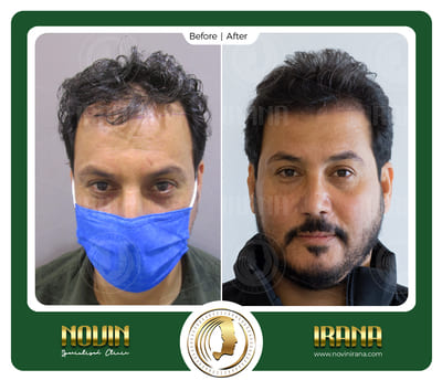 باسم قاسم مذکور - بعد کاشت 1 - عرب