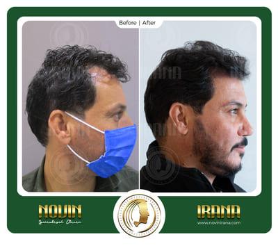 باسم قاسم مذکور - بعد کاشت 2 - عرب
