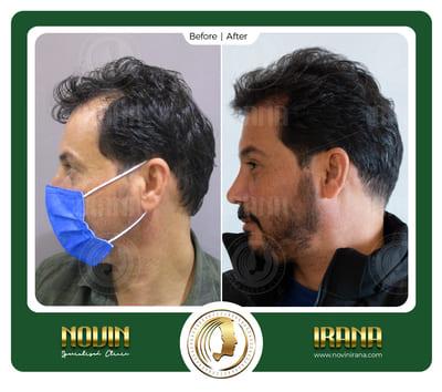 باسم قاسم مذکور - بعد کاشت 3 - عرب