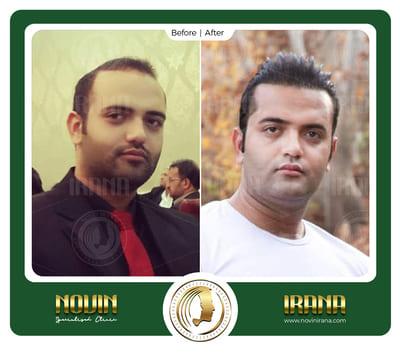 بهمن شهامتی - عرب 2