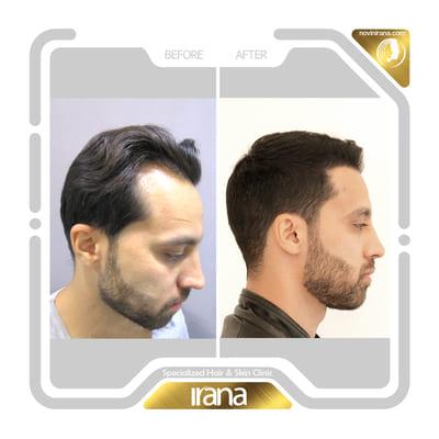 جواد تازیکی - کاشت مو (2)