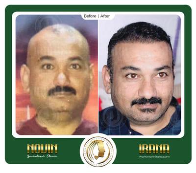 حسن الطائی - کاشت مو - عرب