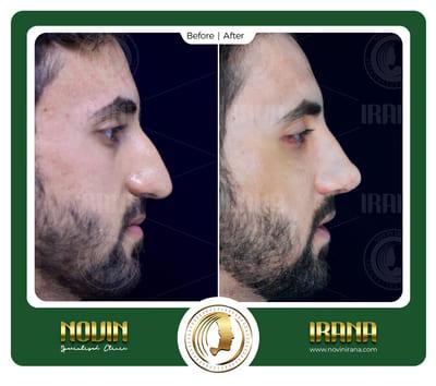 حسن سالم حسن - خزائنی 2