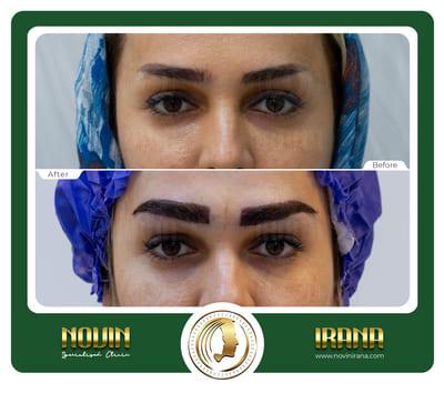کاشت ابرو - باغشنی - عرب 1