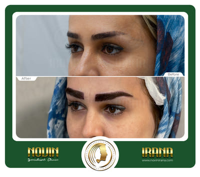 کاشت ابرو - باغشنی - عرب 2