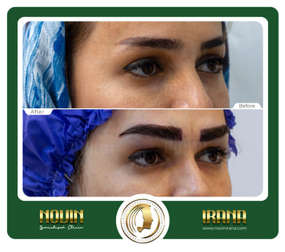 کاشت ابرو - باغشنی - عرب 3