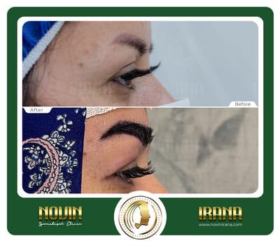 کاشت ابرو - عرب 16