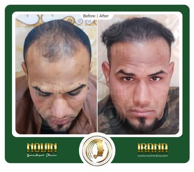 01 - عرب کاشت