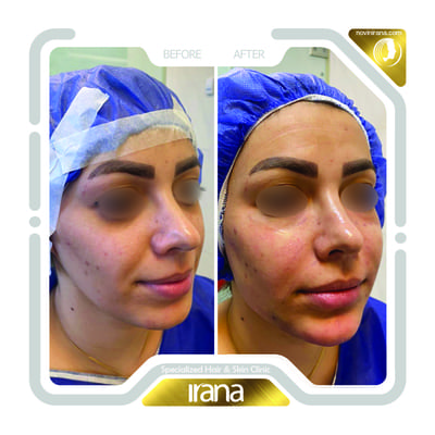 Face fat injection post 1
