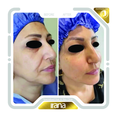 Face fat injection post