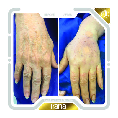 Hand fat injection post