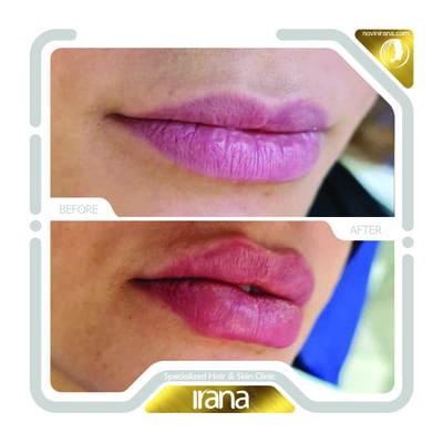 Lip filler post 1